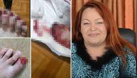 Ruskinja čupala ljudima nokte i tvrdila da ih leči od raka: Debelo je naplaćivala brutalni tretman