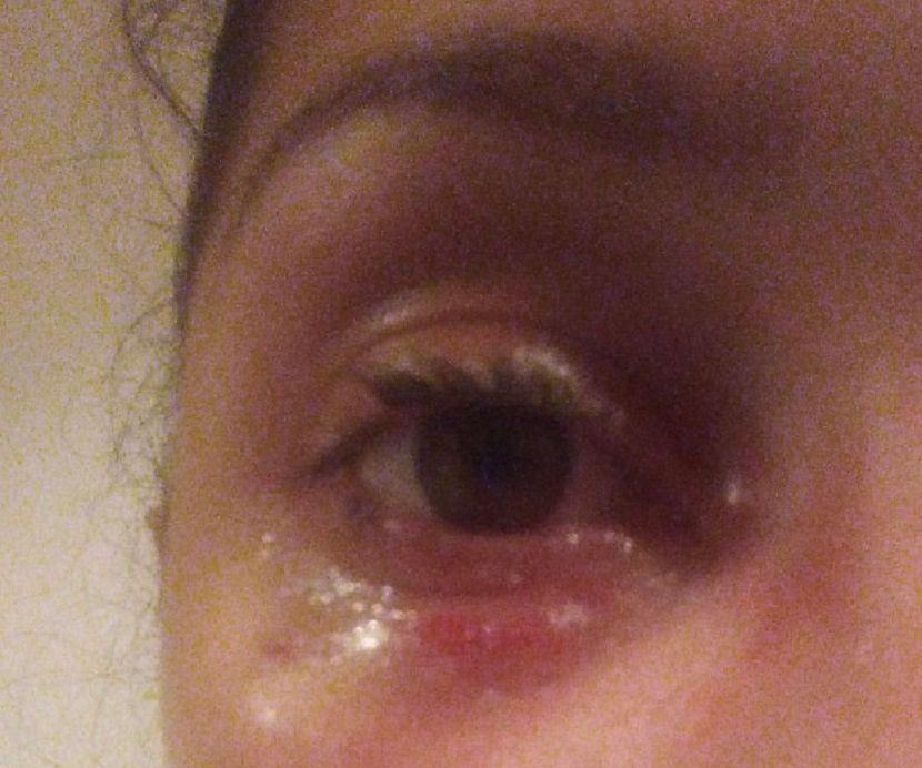 Smrt lepak, oko, povreda
