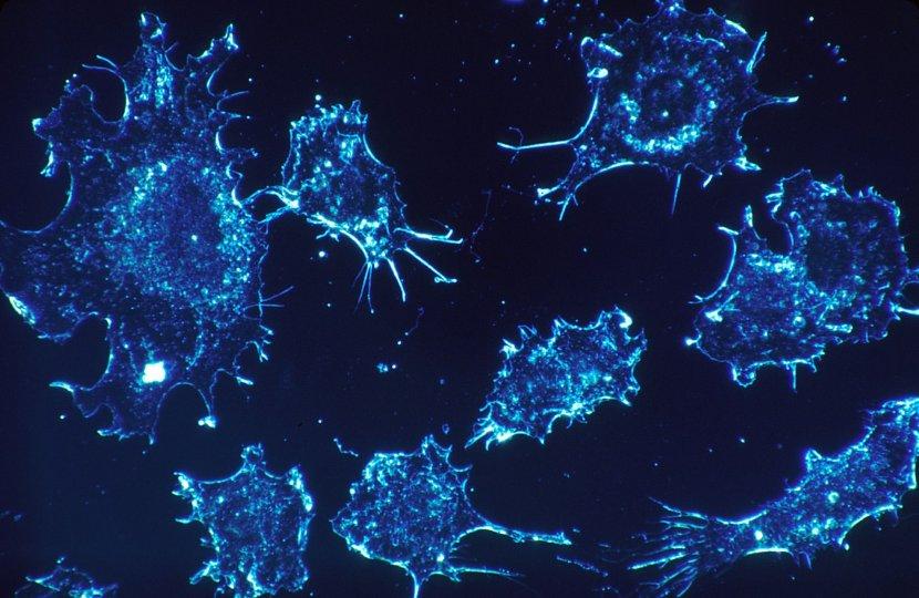 celije raka, rak