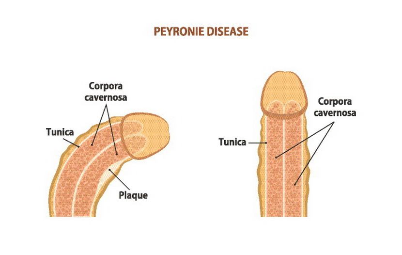 Peyronie's disease, urologija rentgenski snimak