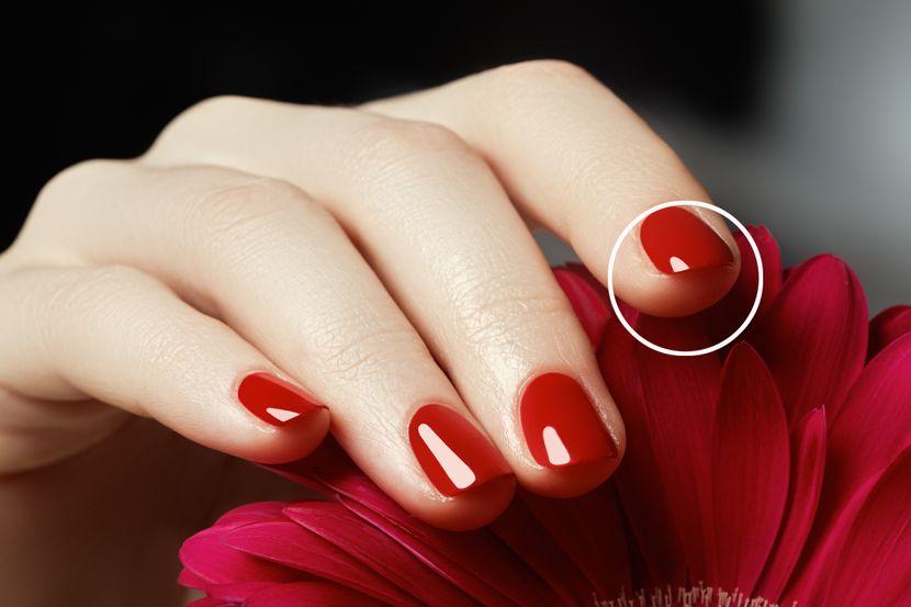 nokat prst