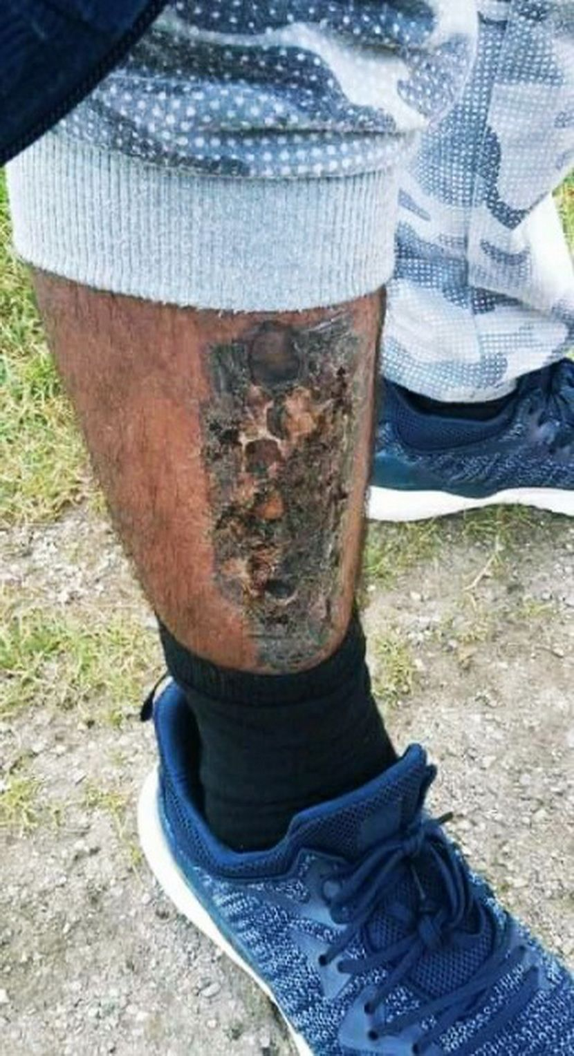 Migrant sa spaljenom nogom