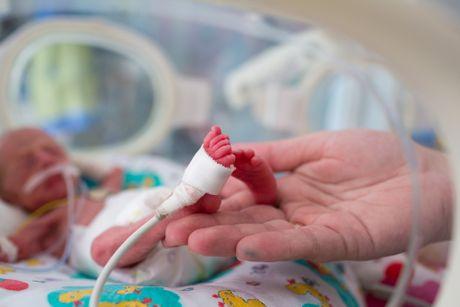 Coronavirus News - Page 3 Prevremeno-rodjena-beba-460x0